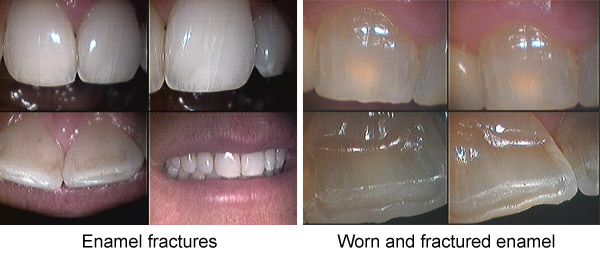 hairline cracks in teeth after whitening